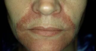 Dermatite périorale, ca fait top mal