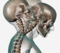 Douleurs à la nuque : différentes causes pour un même problème